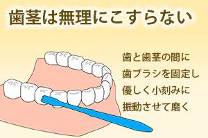 歯茎は無理にこすらない
